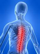 Picture of spine
